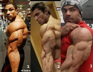 muscle striations
