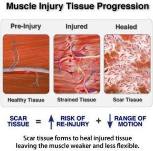 إصابات الانسجه العضلية